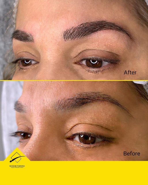 transformation with Microblading